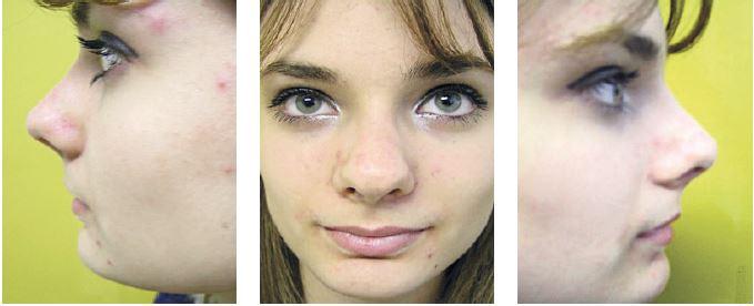 Pacientka z obr. 19 po korekcii zobákovitej deformity zatvoreným prístupom.