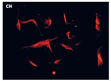 Obr. 3Ch Imunochemický průkaz α-aktinu u linie Ze003 vystavené 5-azacytinu