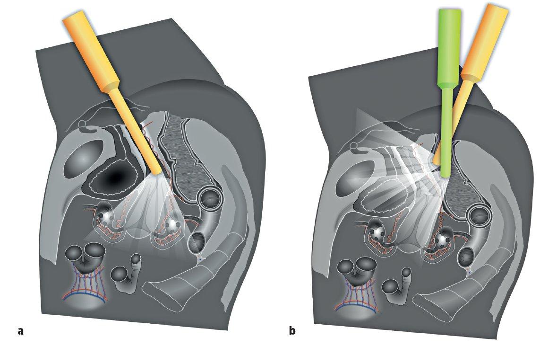 Ultrazvukové vyšetření pánevní anatomie