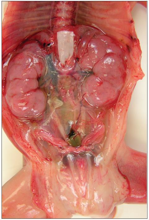 Oboustranná symetrická nefromegalie u pitvaného plodu 21. t.g.