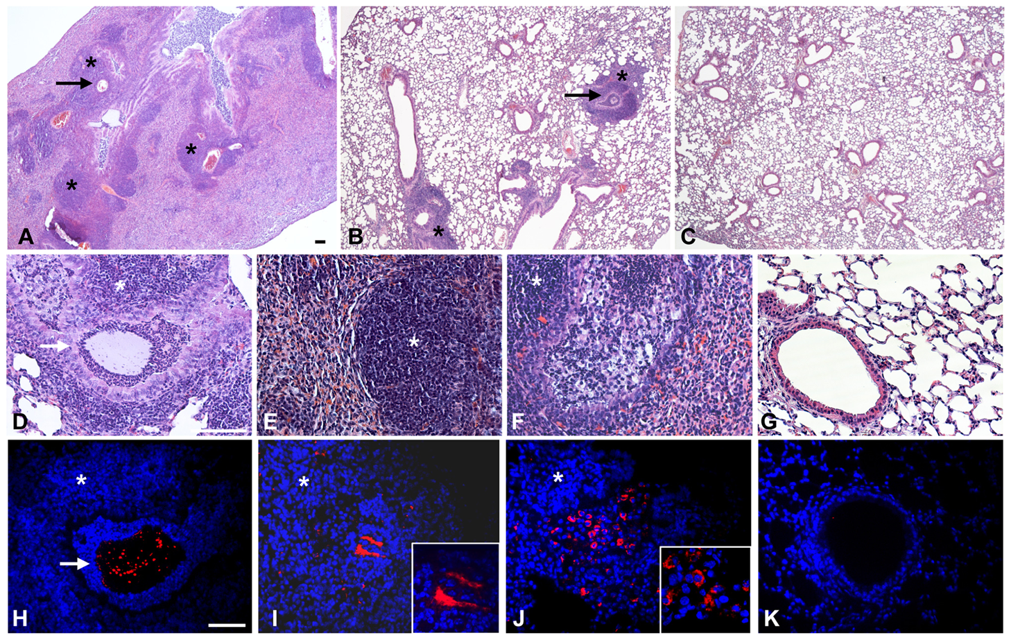 Murine lung histology and localization of <i>P. aeruginosa</i> Pos-STM mutants after 14 days.