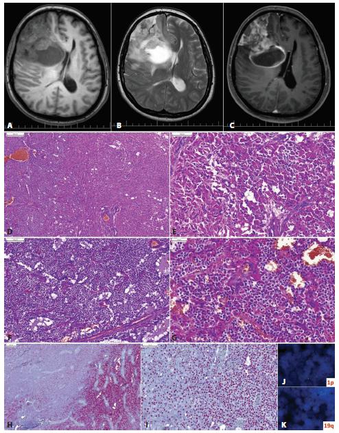 """Glióm frontálneho laloka vpravo u 53-ročnej ženy s anamnézou mesiac trvajúcich bolestí hlavy. Na MRI izo- až hypodenzné cystické ložisko s perifokálnym edémom a prstencovitým """"enhancementom"""" (A, T1; B, T2; C, T1 s gadolíniom). Lézia mala mikroskopicky dve relatívne ostro oddelené zložky: oligodendrogliálnu (D, ľavá tretina obrázku) a astrocytárnu, s nápadnou gemistocytickou diferenciáciou (D vpravo, E). Oligodendrogliálna zložka mala vzhľad prototypického oligodendrogliómu (F), ložiskovo s početnými minigemistocytmi (G). Imunohistochemicky bol tumor IDH1-pozitívny v oligodendrogliálnej zložke (H, vpravo) a negatívny v astocytárnej časti (H, vľavo). Expresia ATRX bola zachovaná v oboch častiach (I). FISH vyšetrením bola v oligodendrogliálnej časti dokázaná kodelécia 1p/19q (J,K). Nádor bol klasifikovaný ako anaplastický oligodendroglióm, IDH-mutovaný, s kodeléciou 1p/19q, WHO grade III. Astrocytárna zložka je nenádorová/reaktívna. Podľa starej klasifikácie (WHO 2007) by takýto tumor mohlo byť klasifikovaný ako anaplastický oligoastrocytóm (zmiešaný glióm). Použitím genetickej analýzy (alebo zástupných imunohistochemických markerov – p53, IDH1, ATRX) je možné rozdelenie drvivej väčšiny """"oligoastrocytómov"""" na oligodendrogliómy a astrocytómy."""