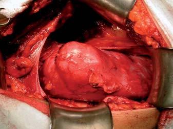 Tumor v oblasti středního segmentu ledviny.
