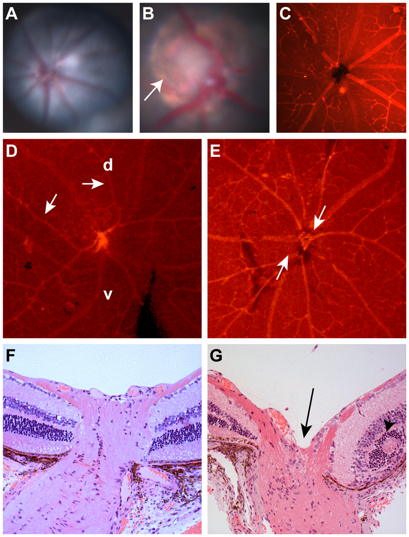 Clinical ocular phenotype in C57BL/6-<i>Pax2<sup>+/A220G</sup></i> mice compared to wild-type, C57BL/6 mice.