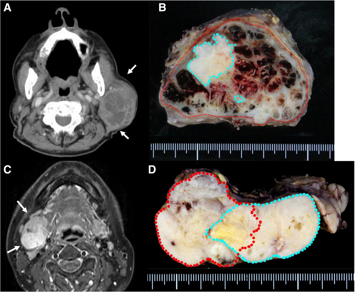 Enhanced CT revealed a large left neck mass with partial enhancement. Necrosis of the inner tumor was suspected. a Macroview of the tumor: PA was completely surrounded by MEC. Red line, cancer; blue line. PA, b MRI revealed a mass with bumpy surface in the right submandibular gland with a partially unclear border. c Macroview of the tumor: MEC existed outside of PA. Red line, cancer; blue line, PA