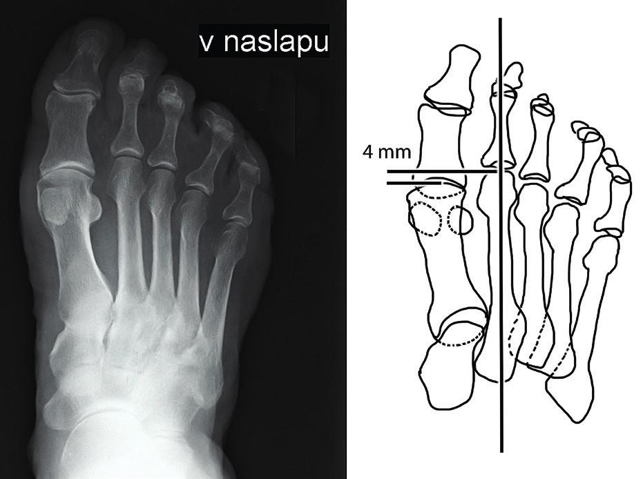 Předozadní rentgenový snímek přednoží v nášlapu s nadměrně dlouhým II. metatarzem; schéma měření rozdílu délky mezi prvním a druhým metatarzem.