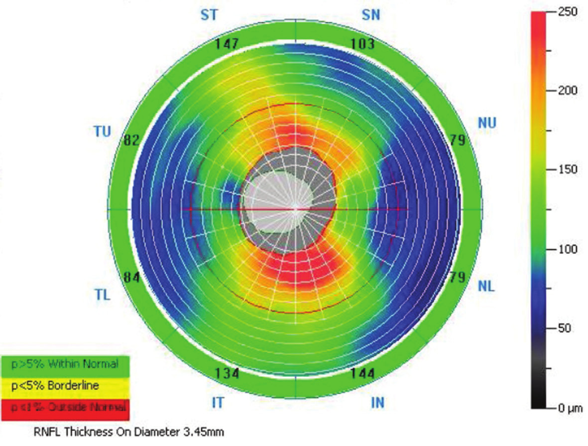Vzor skenu ONH NHM4 s popisem jednotlivých oblastí