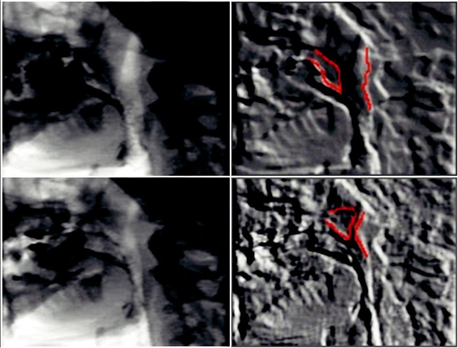 Videofluoroskopie (vlevo zachycený snímek, vpravo vytažení kontur – červeně zvýrazněny struktury velofaryngeálního uzávěru). Horní řada patro v relaxované pozici, dolní řada fáze maximálního uzávěru.
