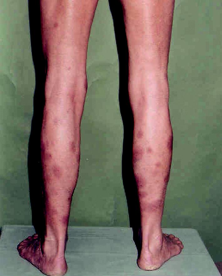 Nález hnedočervených škvŕn na lýtkach pred zahájením liečby prvou sériou chemoterapie COP v januári 2007.