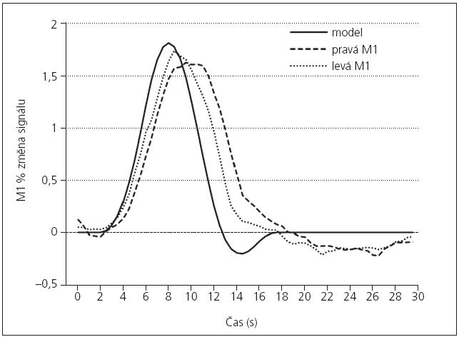 Funkční MR – hemodynamické vyšetření. Okluze ACI vpravo s minimálním hemodynamickým postižením.