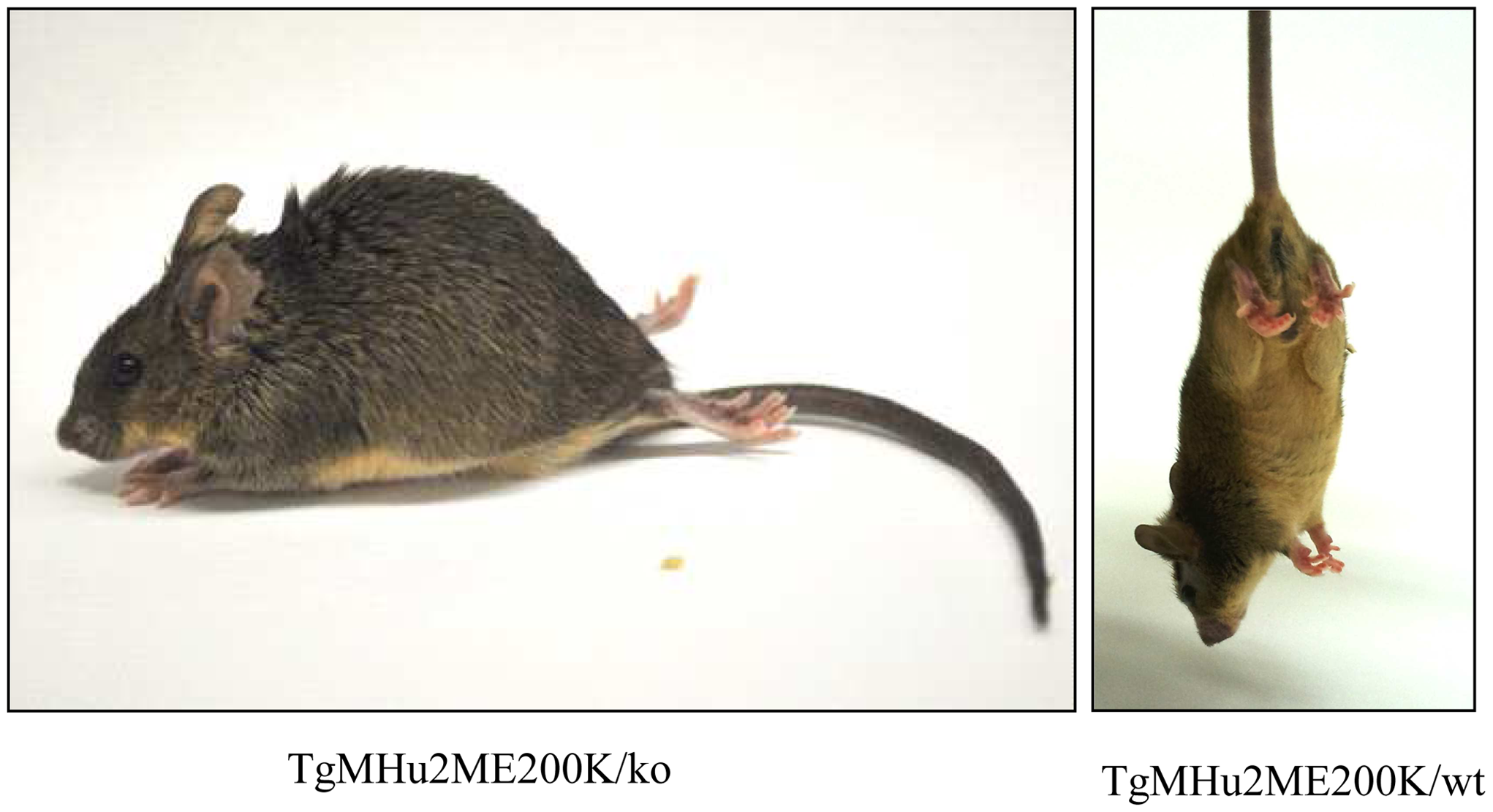 Clinical Characterization of spontaneous disease in TgMHu2ME199K mice.
