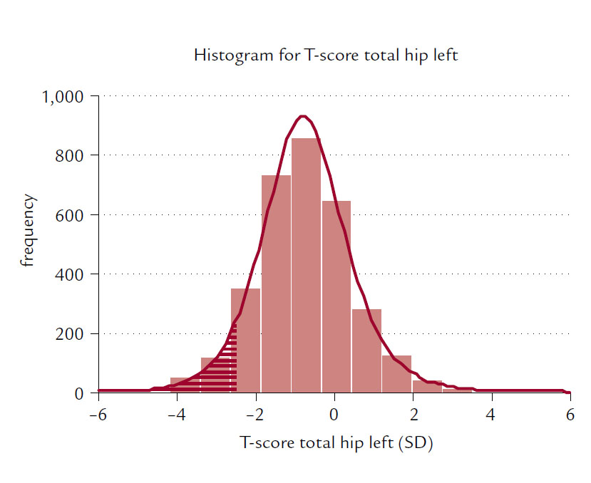 Fig. 2 Expected distribution of frequencies for T-score total hip left variable values in the East Slovak population of osteopenic, osteoporotic women and women with risk factors. Hatched field represents an expected number of frequencies for T- score ≤ – 2.5 SD.