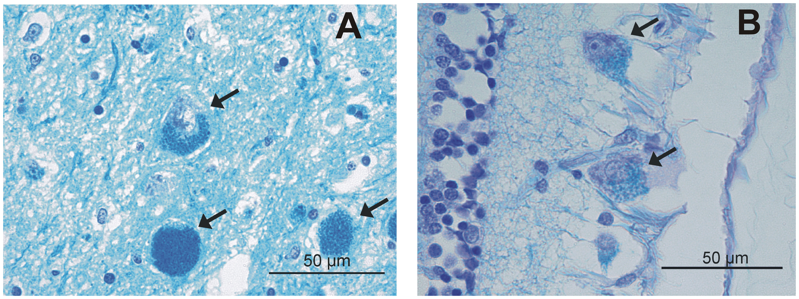 Luxol fast blue (LFB) staining.