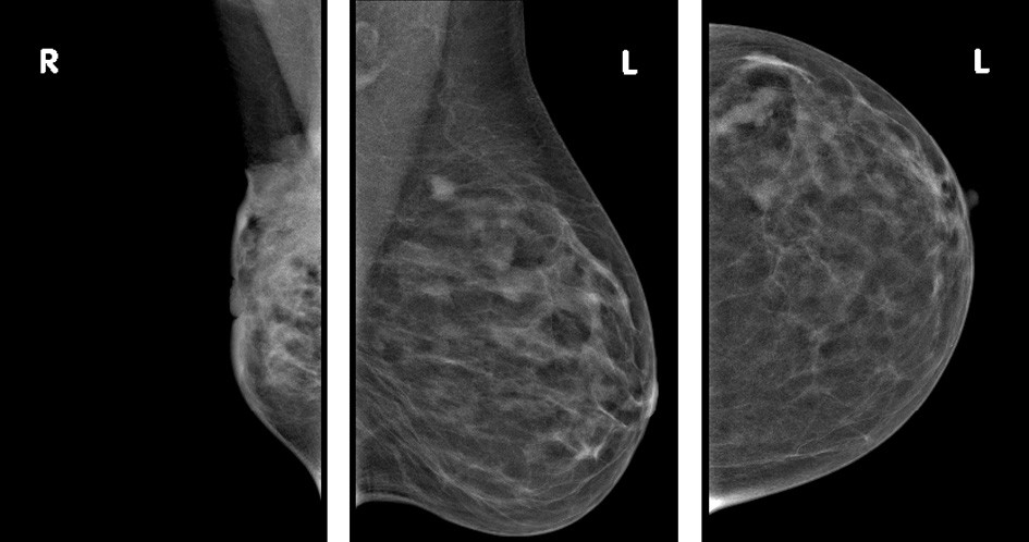 MG bilat – pravý prs výrazně zmenšen s rozsáhlou infiltrací v HK velikosti 7 cm s infiltrací kůže s vpáčením mamily, vlevo v HZK cca 5 okrouhlých ložisek do velikosti 1 cm (kůže není změněná, fyziologické uzliny v levé axile)  Fig. 3: Bilateral mammography – right breast with significant size reduction and with extensive infiltration (7 cm) in the upper quadrant and skin infiltration with nipple retraction – left breast – around 5 rounded foci up to 1 cm in size in the upper external quadrant (no skin changes, normal axillary lymph nodes on the left side)