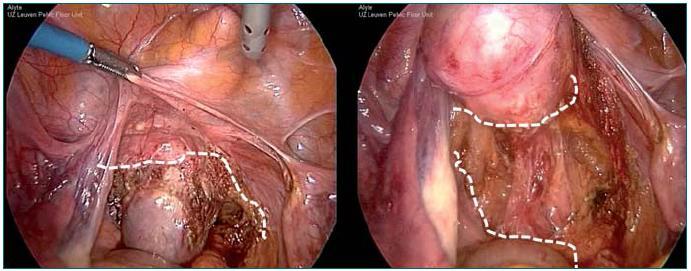 Schéma 3. Anteriorní (vlevo) a posteriorní (vpravo) preparace peritonea sloužící k odhalení vaginy a umístění síťky.