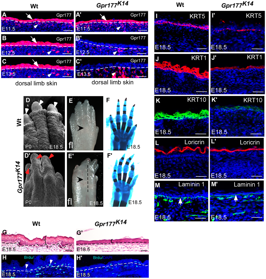 Deletion of <i>Gpr177</i> in embryonic epidermis results in skin defects attributing to hypoplastic spinous layer.