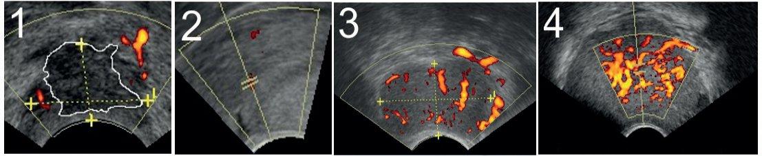 Škála subjektivního hodnocení intenzity vaskularizace nádoru (color score)