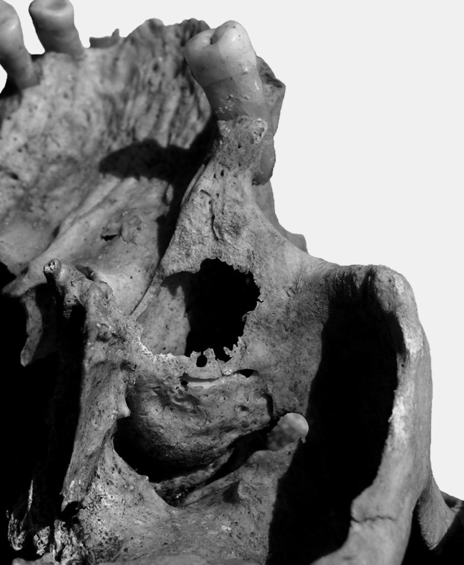 Na levé horní čelisti asi 50–60letého muže (hrob č. A 810) byly nalezeny v oblasti kořenů třetí stoličky stopy po chronickém zánětlivém procesu, který perforoval sinus maxillaris.