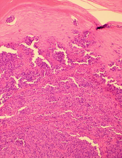 Histopatologický nález akrolentiginózního melanomu.