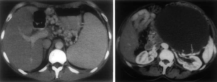 CT nález pri SPH. A – splenomegália, masívne gastrické varixy, B – pankreatický cystadenom. Lienálna véna (šípka) je uložená tesne za zadnou stenou TU a javí sa prerušená (trojuholník) [8]. Fig. 7. CT findings in SPH. A – splenomegaly, massive gastric varices, B – pancreatic cystadenoma. Splenic vein (arrow) is placed just behind the posterior wall of the tumor and appears broken (triangle) [8].