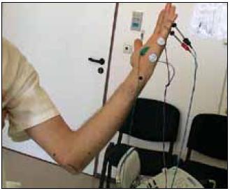 Schéma umístění registračních a stimulačních elektrod pro vyšetření motorického vedení n. ulnaris k ADM (m. abductor digiti minimi) a senzitivního vedení k V. prstu. Přitom je stále zachován úhel v lokti 90°.