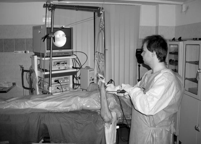Praktická výuka artroskopie zápěstí na fixovaném kadaveru