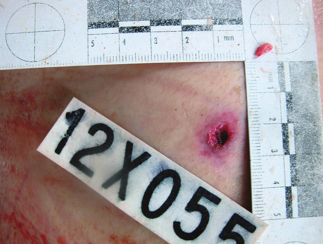 Fig. 2. The firearm exit wound