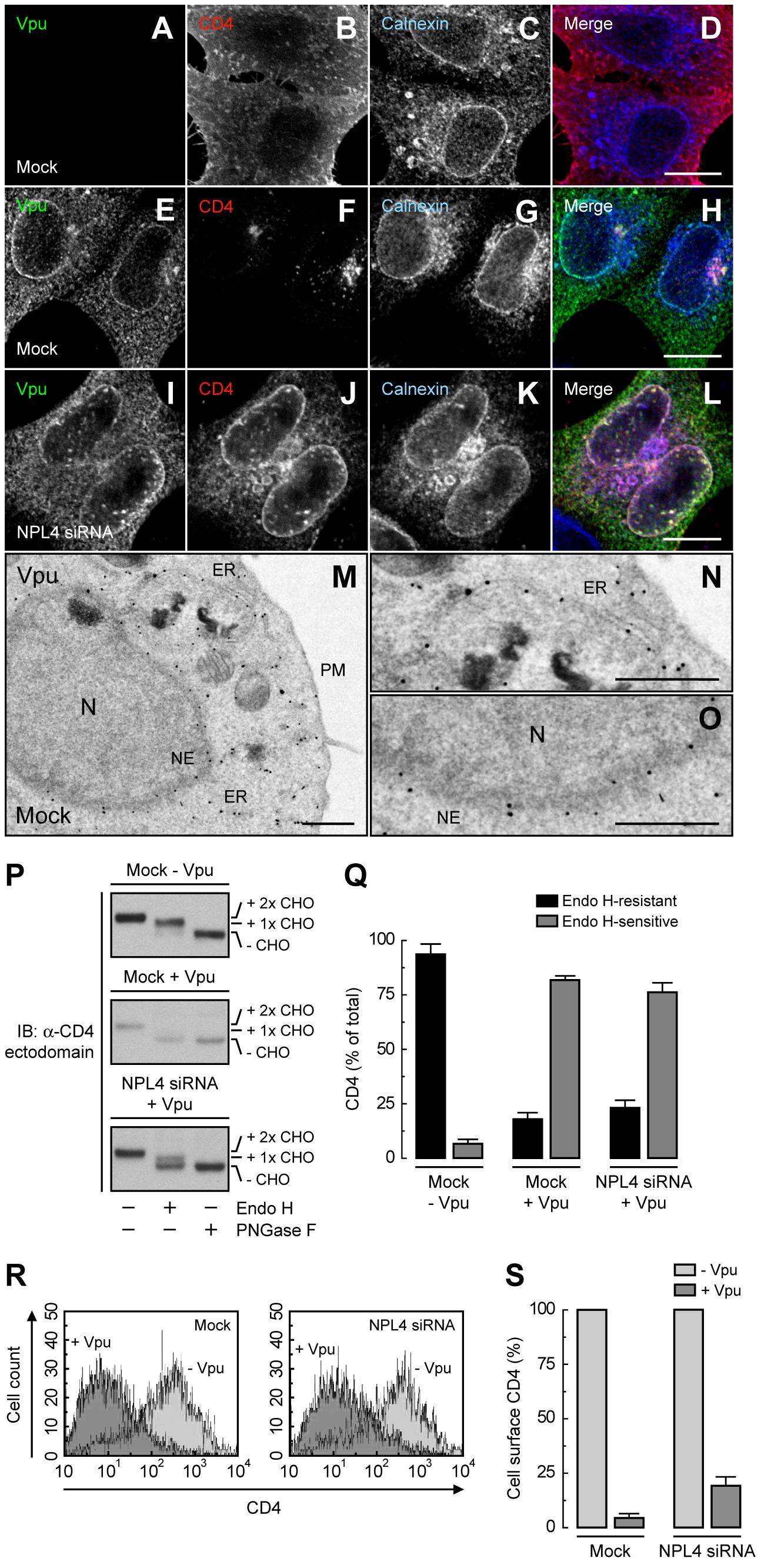 ER retention of CD4 mediated by Vpu.