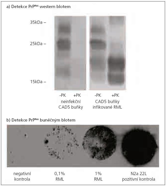 Detekce PrP<sup>Res</sup> western blotem a buněčným blotem. a) Detekce PrP<sup>C</sup> a PrP<sup>Res</sup> western blotem v myších neuronálních CAD5 buňkách. Neinfekované CAD5 buňky neobsahují abnormální prionový protein. PrP<sup>TSE</sup> je přítomen v CAD5 buňkách infikovaných RML kmenem myší laboratorní scrapie. Buněčné lyzáty byly inkubovány s proteinázou K (+PK) nebo bez proteinázy K (-PK). Prionový protein byl detekován pomocí monoklonální protilátky AH6. Prionový protein se vyskytuje ve třech izoformách – neglykosylované, monoglykosylované a diglykosylované. Po štěpení proteinázou K došlo u neinfekčních buněk ke kompletní degradaci PrP<sup>C</sup>. U infikovaných buněk detekujeme PrP.sup>Res</sup>, u kterého došlo ke snížení molekulové hmotnosti jednotlivých isoforem po odštěpení části molekuly PrP<sup>TSE</sup>. b) Detekce PrP<sup>Res</sup> buněčným blotem v myších neuronálních N2a buňkách infikovaných myším prionovým kmenem RML. Princip buněčného blotu spočívá v přenosu rostoucích buněk (po třetí pasáži od inkubace s infekčním agens) na nitrocelulózovou membránu, kde je PrP<sup>Res</sup> detekován obdobným způsobem jako při western blotu (štěpení PrP proteinázou K a detekce PrP<sup>Res</sup> pomocí protilátky). Negativní kontrola – neinfikované N2a buňky, 0,1% RML– N2a buňky infikované 0,1% infekčním RML mozkovým homogenátem, 1% RML – N2a buňky infikované 1% infekčním RML mozkovým homogenátem, N2a 22L– pozitivní kontrola (N2a buňky stabilně infikované 22L kmenem myší laboratorní scrapie).