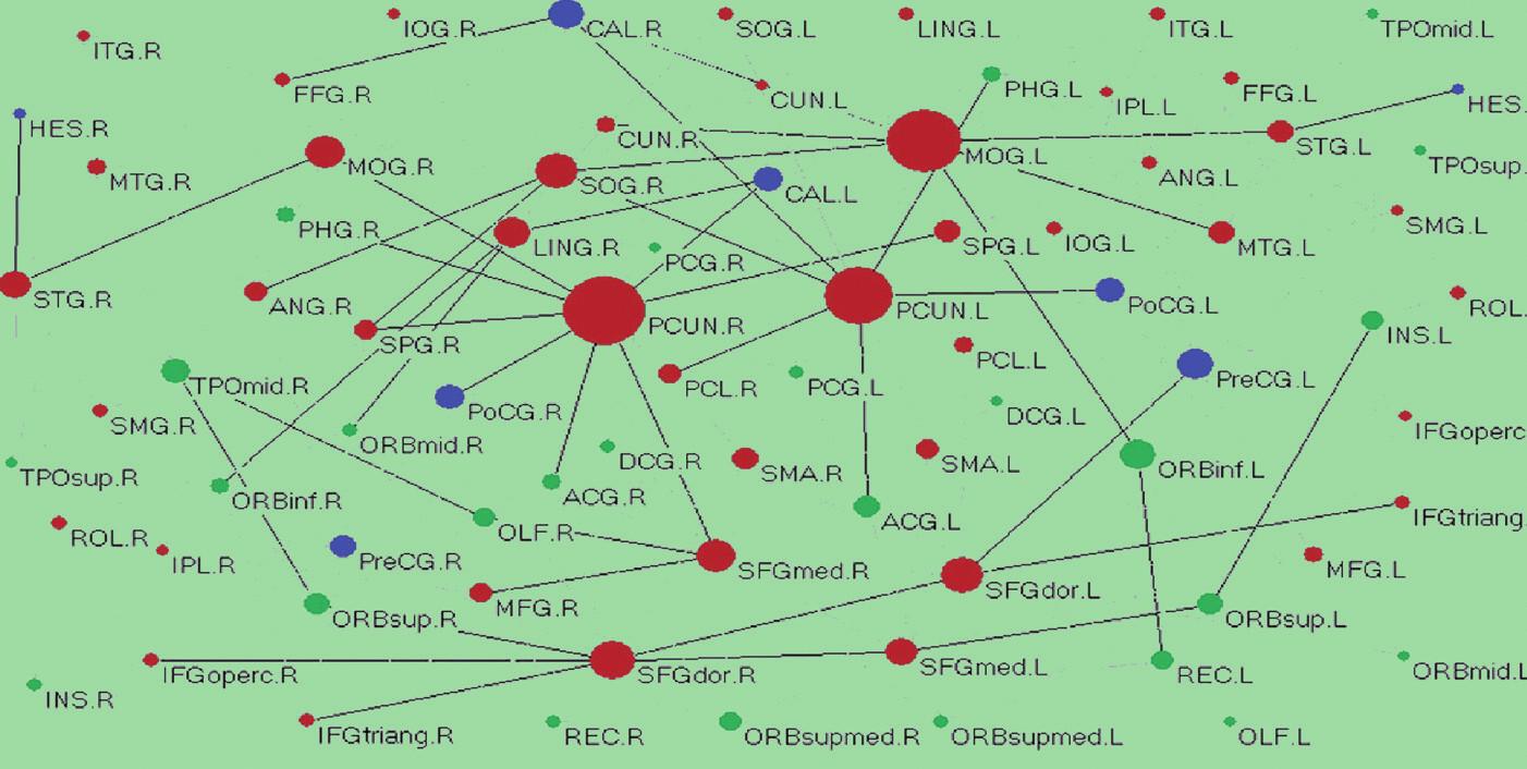 """Příklad topologické mapy, """"konektomu"""", korové sítě lidského mozku. Uzly odpovídají jednotlivým korovým oblastem, hrany odpovídají anatomickým spojům zjištěným metodou DTI (7)."""