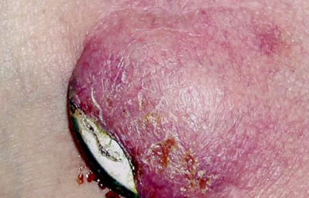 Dekubitus a infekce kapsy kardiostimulátoru