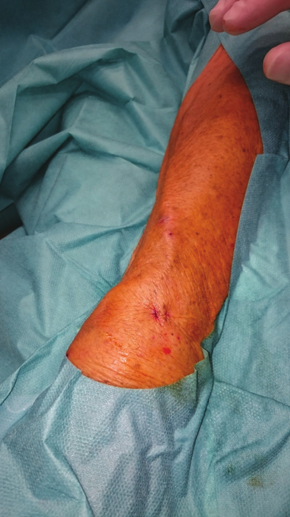 Výsledný stav na předloktí ihned po výkonu