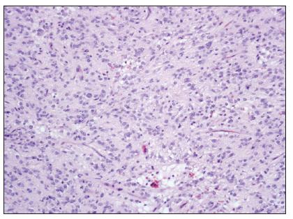 GIST převážně epiteloidního vzhledu s ložiskovou vakuolizací cytoplazmy, HE, zvětšení 100x  Fig. 2. GIST, prevailing epitheloid cells with focal cytoplasmic vacuolization, H-E staining, enlargement 100x