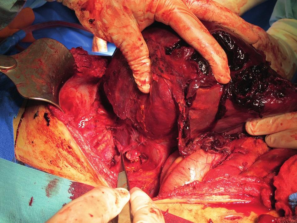 Pravostranná hemihepatektomie – peroperační obraz Fig. 3. Right-sided hemihepatectomy – perioperative photograph