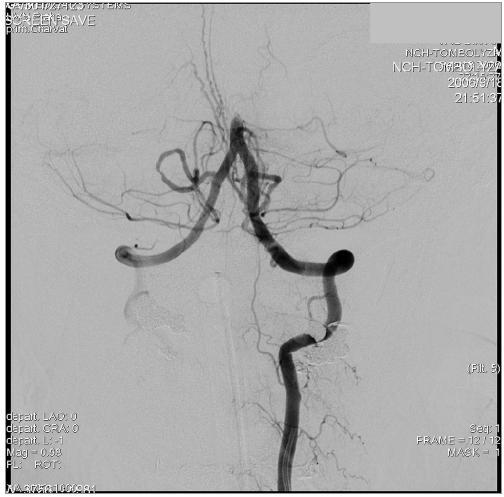 DSA snímek levé AV v AP projekci. Uzávěr a. basilaris.