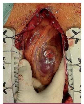 Ošetření bodného srdečního poranění stehy přes teflonové podložky.