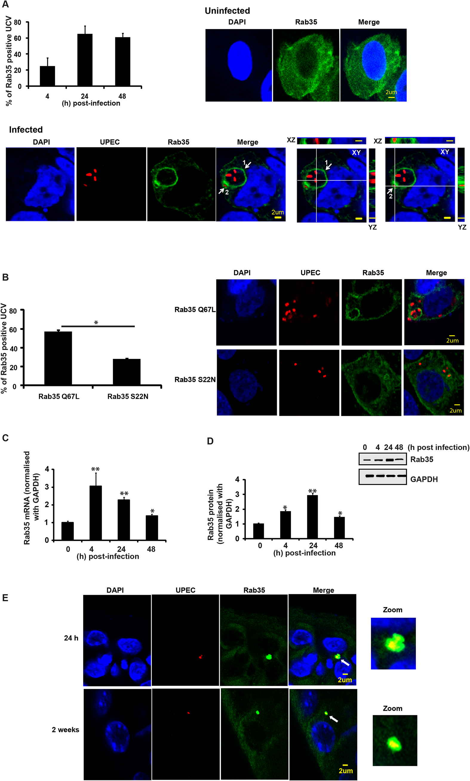 Rab35 protein localizes to UPEC-containing vacuole and is up regulated during UPEC infection.