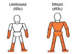 Formy systémové sklerodermie dle kožního postižení.