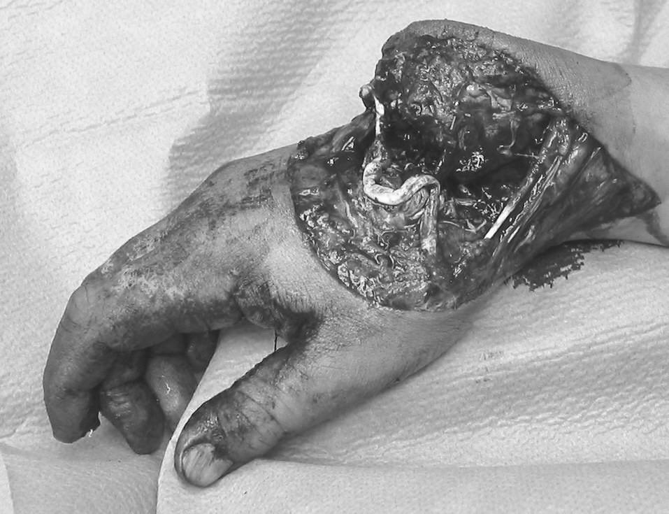 Obr. 1c: Pacient č. 1. Semiamputace v zápěstí téže horní končetiny