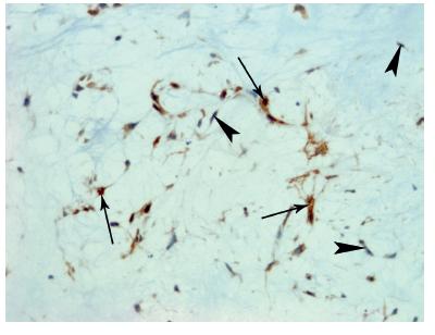 Primárny pleomorfný adenóm – mezenchymálna komponenta. Bcl-2 imunopozitivita vretenovitých buniek myxoidných oblastí varíruje od negatívnej (hlava šípky), strednej až ku silnopozitívnej (šípka) (x 200).