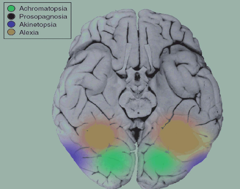 """Poloha """"těžiště"""" neuronální sítě velkého rozsahu (konektomu) rozlišující lidského tváře je vyznačena červeně. Celá síť je podstatně rozsáhlejší, rozlišuje různé aspekty lidských tváří a jejich proměn včetně emočních výrazů a důvěryhodnosti. Jejími součástmi jsou další zrakové korové oblasti a některé oblasti limbické a paralimbické kůry včetně amygdaly a očnicové kůry (přehled 18). Důsledkem poškození zeleně vyznačené oblasti je cerebrální achromatopsie, poškození modré oblasti je příčinou akinetopsie, poškození žluté oblasti způsobí alexii (32)."""