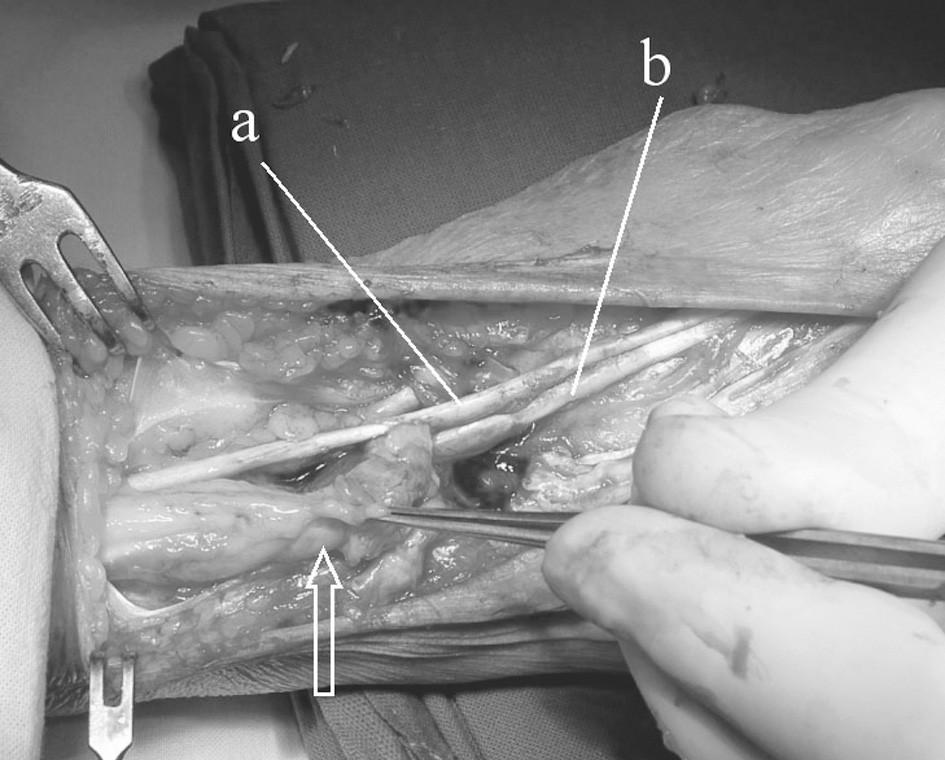 Operační nález synovitidy extenzorů: šipka ukazuje šlacha extenzorů prstů s masivní tenosynovitidou, a) m.extensor dig. II., b) m. extensor indicis proprius (obě šlachy bez poškození.