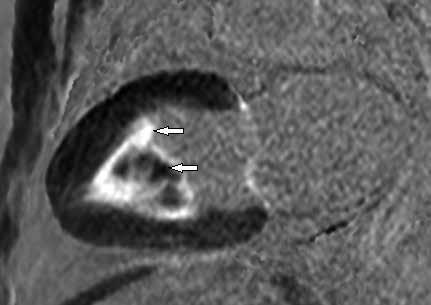 Postkontrastní T1 vážené obrazy (LGE) v dlouhé ose LK.