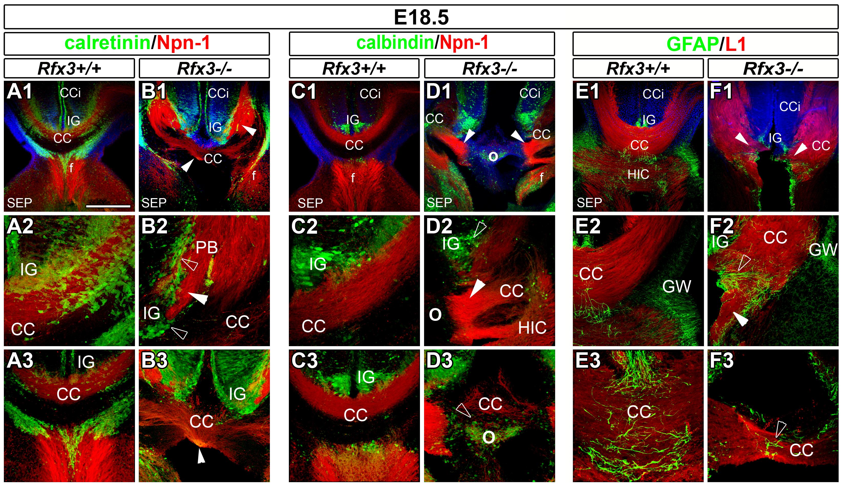 Abnormal callosal axon pathfinding in <i>Rfx3−/−</i> mice.