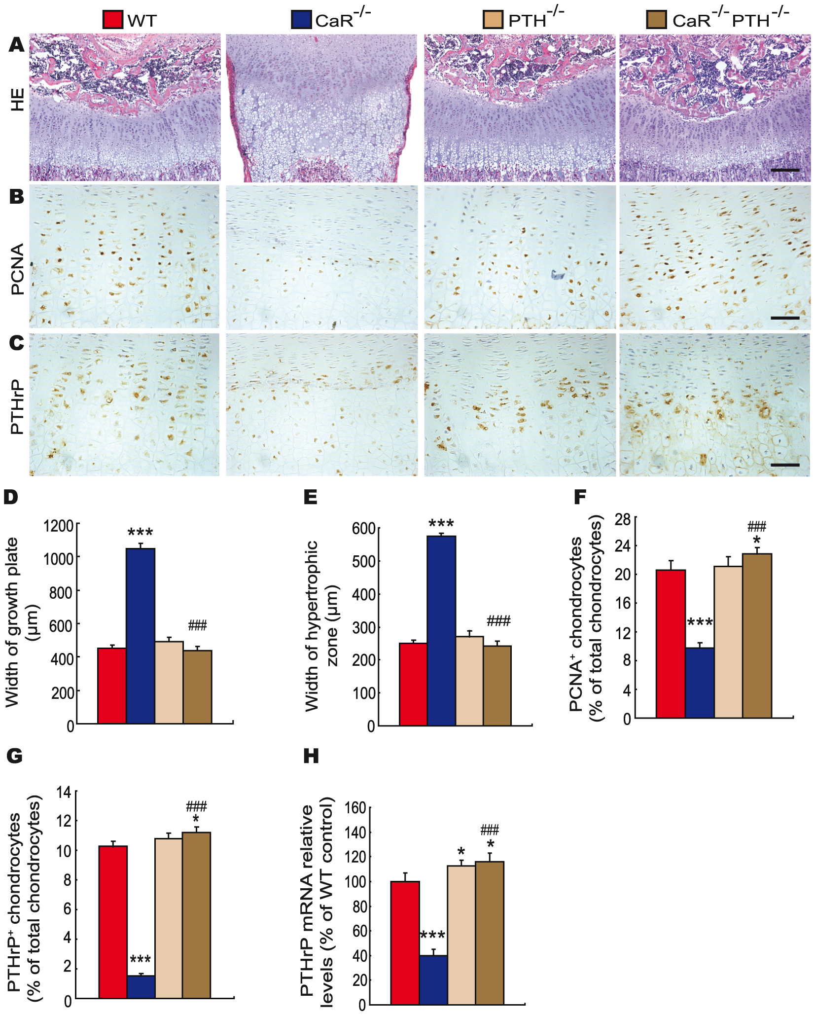Effects of deletion of PTH on endochondral bone formation in CaR–deficient mice.