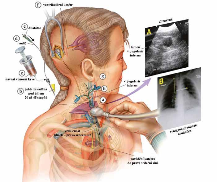 Schéma implantace VAS s využitím ultrazvukové a rentgenové kontroly (upraveno) [91].
