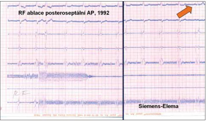 Záznam z první radiofrekvenční ablace pro arytmii v ČR z roku 1992. EKG i intrakardiální signály z katétrů byly zaznamenávány kontinuálně na papír tryskovým zapisovačem (Mingograph, Siemens-Elema). Šipka označuje vymizení vlny delta během aplikace radiofrekvenční energie.