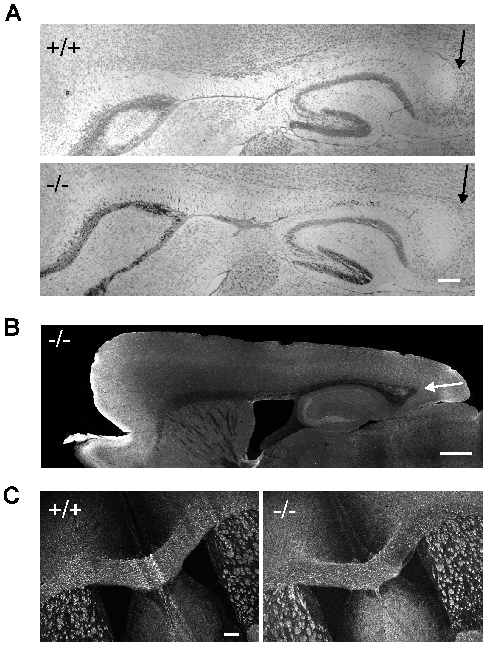 Absence of hypoplasia of posterior corpus callosum in β-III spectrin knockout mice.