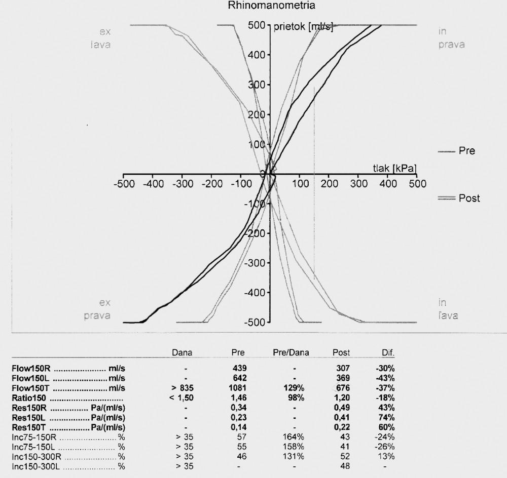Pozitívny expozičný test (černé krivky – rinogram pred pracovnou zmenou, šedé krivky – rinogram po pracovnej zmene)