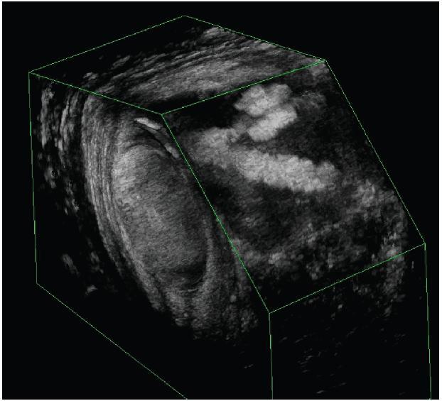"""3D endosonografický obraz dvouchobotové píštěle tvaru """"V"""" Fig. 3: 3D endosonography imaging of double-sinus V-shaped fistula"""
